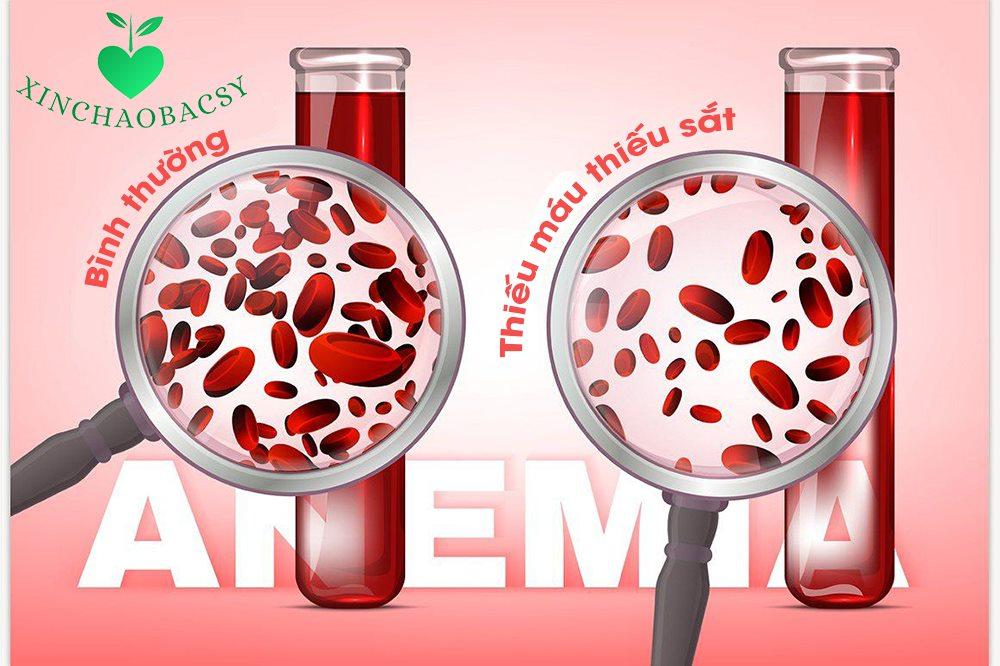 Thiếu máu thiếu sắt và những điều bạn cần biết để ngăn chặn bệnh
